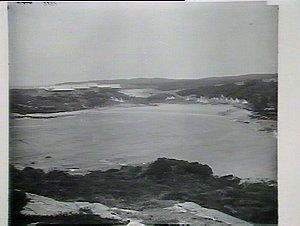 Little Bay Sanitorium, Coast Hospital